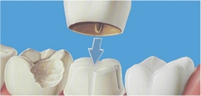 Cosmetic surgery in Malaysia - Dental Dental Crown