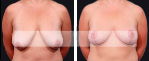 Breast Augmentation Thailand-Breast Lift