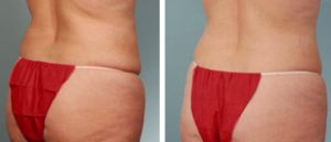 Liposuction in Thailand-Coolsculpting