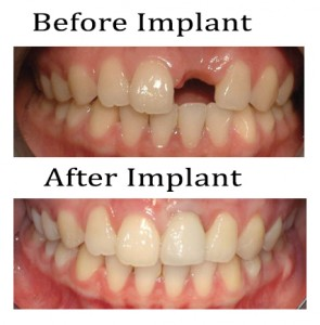 Cosmetic surgery in Malaysia - Dental Implant Before and After