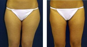 Liposuction in Thailand-Vaser Liposuction Before and After