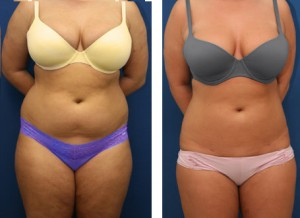 Liposuction in Thailand-Before and After
