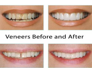Cosmetic Surgery in Malaysia - Dental Veneers