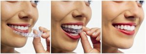 Cosmetic surgery in Malaysia - Dental Treatment Invisalign