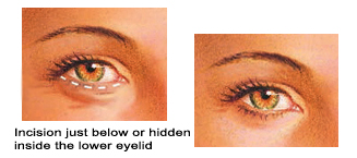 Cosmetic Surgery in Malaysia-Eyelid Surgery Incisions