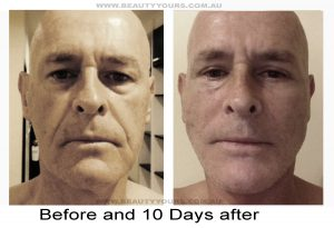 Cosmetic Surgery in Malaysia for Male-10 Days After Facelift