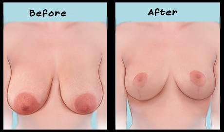 Breast Reduction Malaysia-Breast Reduction Before After