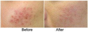 Facelift in Malaysia-Fraxel Laser before and after