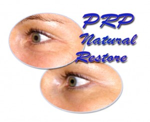Facelift in Malaysia-PRP