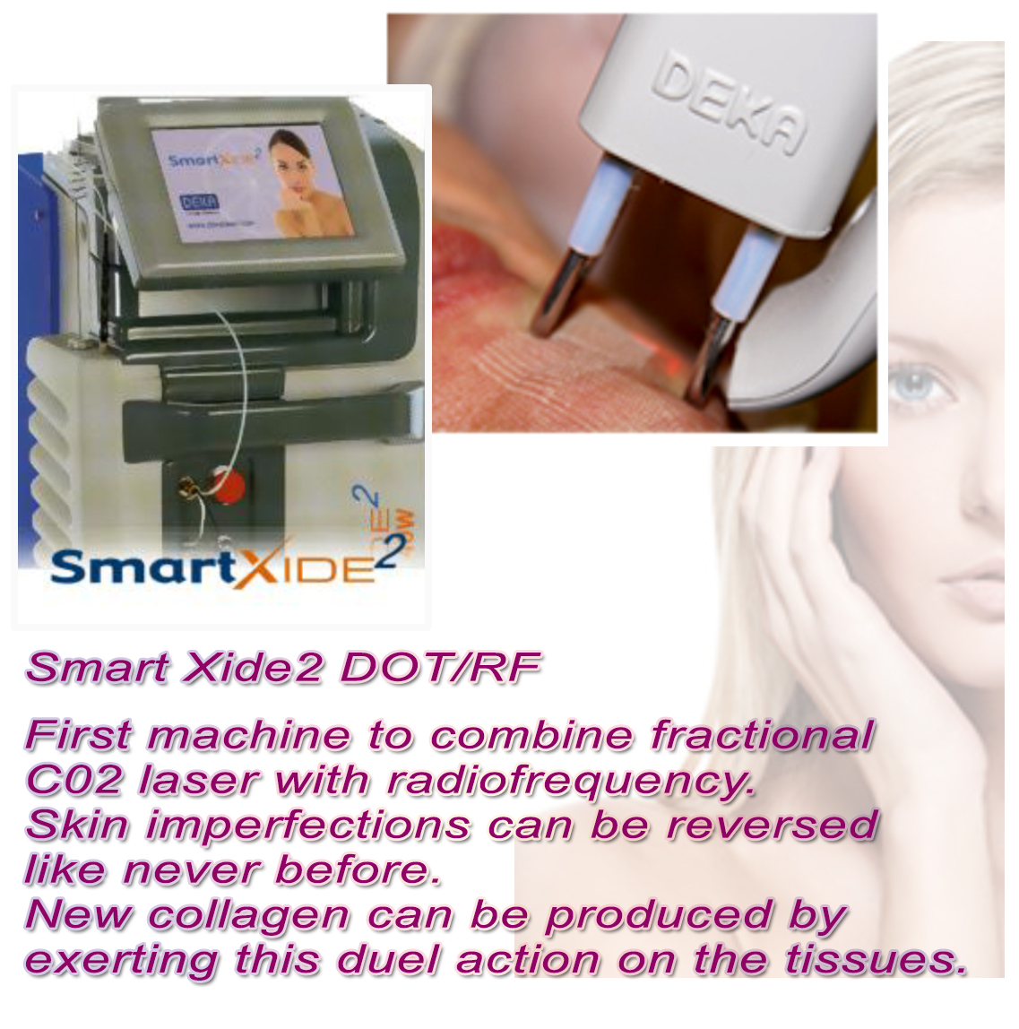 Facelift in Malaysia-Smart Xide2 &RF