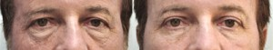 Male Eyelid Surgery Brightening tired eyes