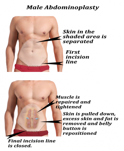 Cosmetic Surgery in Malaysia for Male-Abdominosplasty