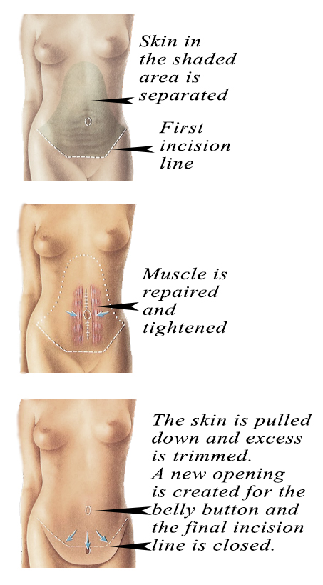 Tummy Tuck Surgery jpg