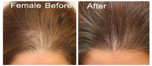 Female Hair Transplant Before After