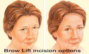 Brow Lift incision options