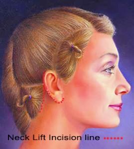 neck lift 2