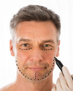 Cosmetic Surgery in Malaysia-Facelift