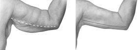 Tummy Tuck Malaysia-Body Lift-Arm Lift