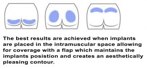 Buttock Augmentation Implant Placement