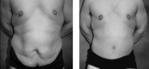 Cosmetic Surgery in Malaysia for Male-Tummy Tuck