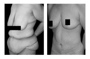 Tummy Tuck Malaysia-Belit Lipectomy