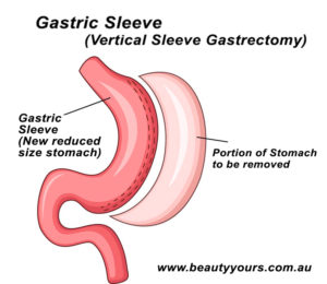 Bariatric Surgery in Thailand - Gastric Sleeve (Sleeve Gastrectomy)