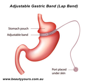 Bariatric Surgery in Thailand - Gastric Band (Lap Band)
